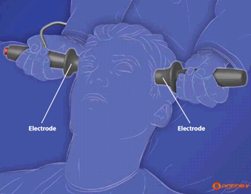 an argument against the usage of electroconvulsive therapy Electroconvulsive therapy, also known as electroshock or ect, is a type of psychiatric shock therapy involving the induction of an artificial seizure in a patient by passing electricity through.